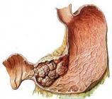 幽门螺杆菌患者如何防胃癌