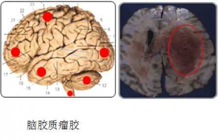 脑瘤胶质瘤