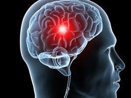 脑动脉瘤的治疗