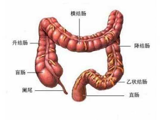 肠癌治疗传统方法的弊端